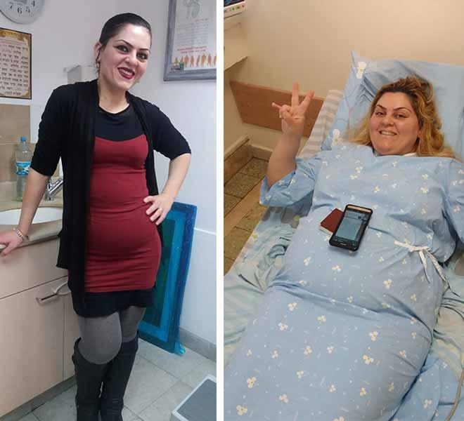 אחרי ניתוח שרוול קיבה