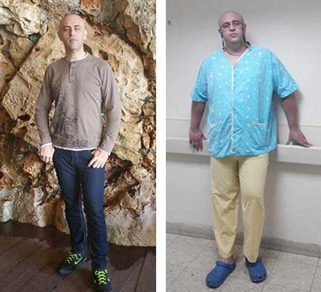 לפני ואחרי ניתוח מעקף