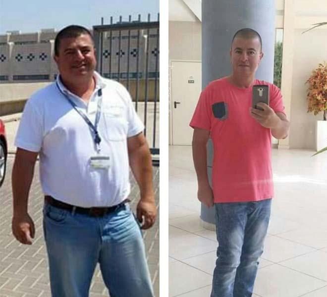 לפני ואחרי מעקף קיבה