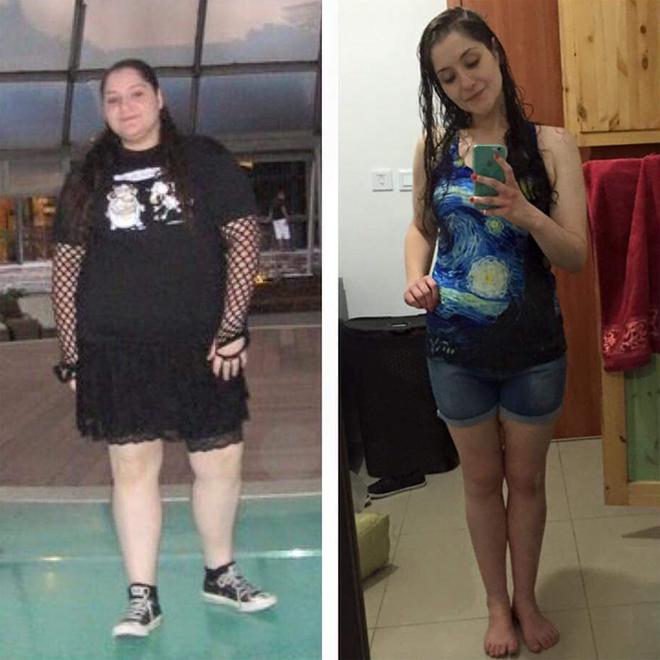 לפני ואחרי ניתוח שרוול