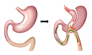 Omega loop - single anastomosis gastric bypass