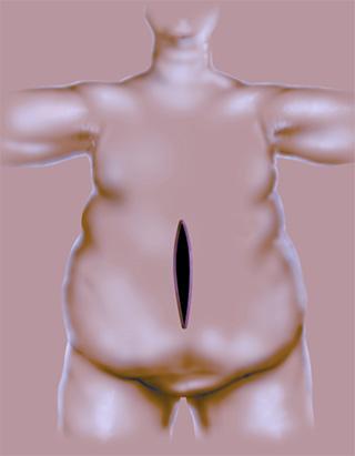 פתיחת בטן לעומת לפרסקופיה