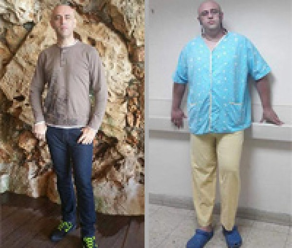 לפני ואחרי הניתוח מעקף קיבה