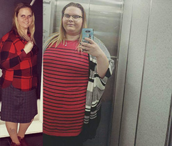לפני ואחרי ניתוח קיצור קיבה